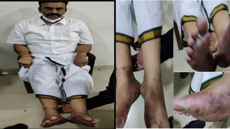 Raghu Raju Torture